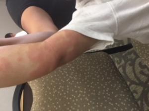 Großflächige rote Hautstellen am Arm bei Neurodermitis