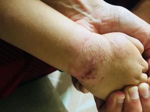 Neurodermitis an der Hand mit deutlichen Kratzspuren