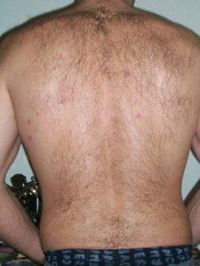 Rücken ohne Akne nach der Phlogistoncreme