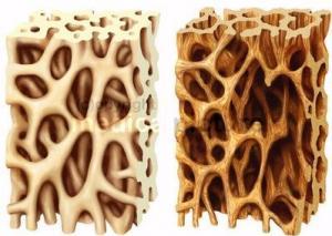 Knochenbälkchen links gesund, rechts Osteoporose mit Minderung der Knochenbälkchen